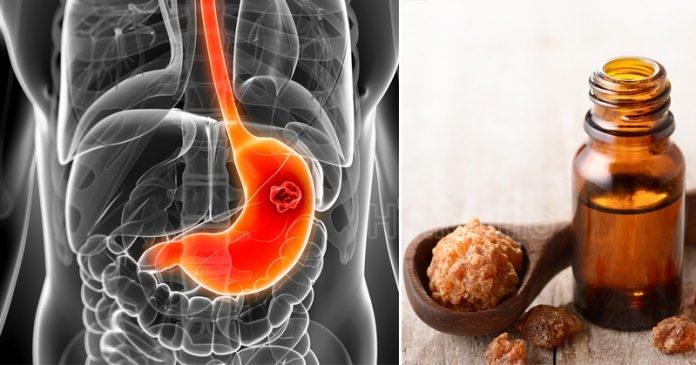Top 6 лучших эфирных масел для улучшения пищеварения